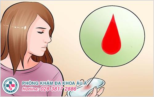 Khí hư có 1 ít sợi máu là bệnh gì ? Nguyên nhân cách trị