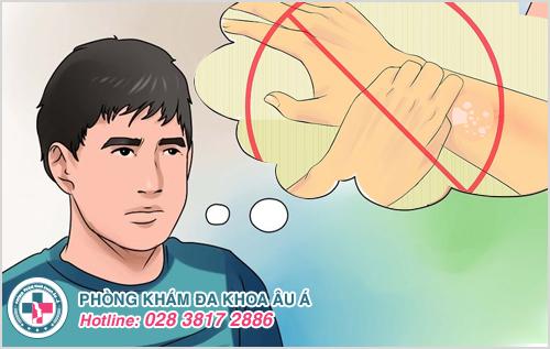 Viêm da tiếp xúc: Hình ảnh nguyên nhân dấu hiệu cách trị