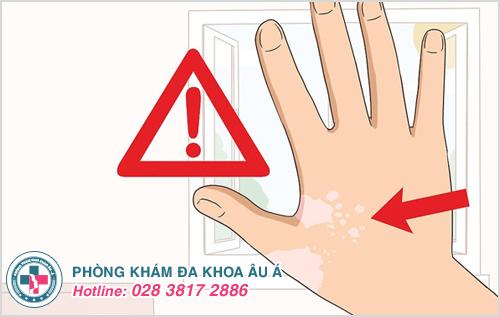 Lang ben có nguy hiểm không và có chữa được không?