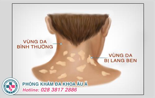 Lang ben ở cổ : Nguyên nhân dấu hiệu và cách điều trị