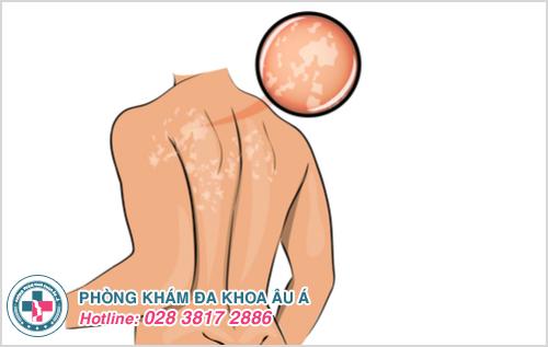 Lang ben ở lưng: Nguyên nhân dấu hiệu và cách điều trị