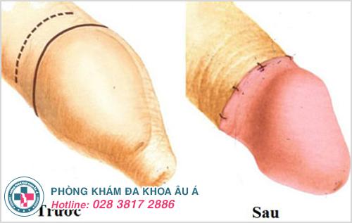 Một số hình ảnh trước và sau khi cắt bao quy đầu ở nam giới
