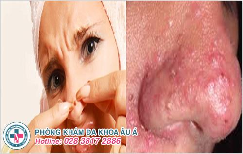 Mụn bọc ở mũi : Hình ảnh nguyên nhân dấu hiệu và cách trị