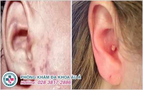 Mụn bọc ở tai : Hình ảnh nguyên nhân dấu hiệu và cách trị
