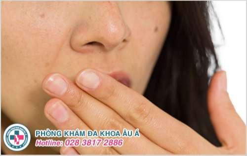Mụn cám ở miệng : Hình ảnh nguyên nhân dấu hiệu và cách trị