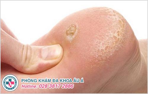 Mụn cóc ở chân: Hình ảnh nguyên nhân dấu hiệu và cách trị