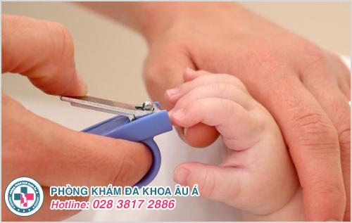Mụn cóc ở trẻ em: Hình ảnh nguyên nhân dấu hiệu cách chữa