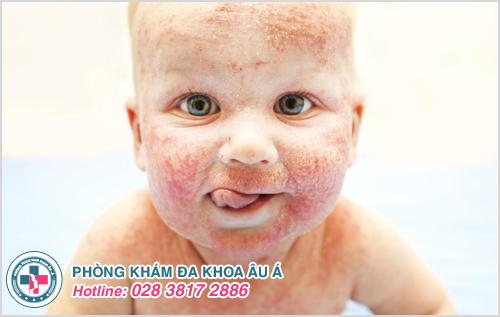Mụn cơm ở trẻ em : Hình ảnh nguyên nhân dấu hiệu cách trị