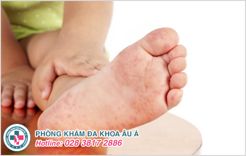 Mụn đỏ ở chân: Hình ảnh nguyên nhân biểu hiện và cách trị
