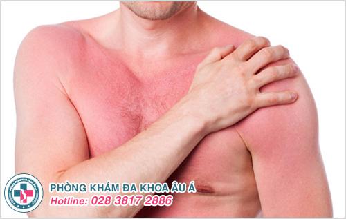 Da nổi mụn đỏ, ngứa và sưng gây cho người bệnh không ít bất tiện trong sinh hoạt