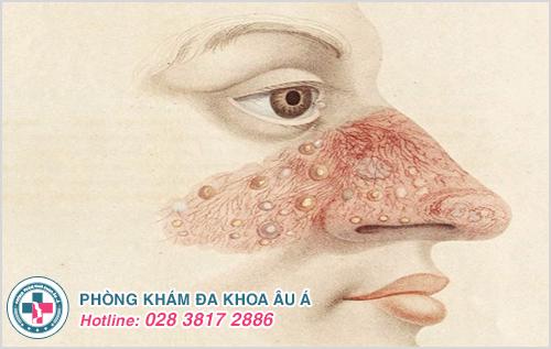 Mụn mủ ở mũi : Hình ảnh nguyên nhân dấu hiệu cách chữa