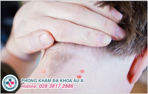 Mụn mủ sau gáy : Hình ảnh nguyên nhân biểu hiện cách trị