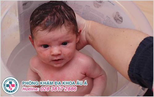 Mụn nhọt ở trẻ em : Hình ảnh nguyên nhân dấu hiệu cách trị
