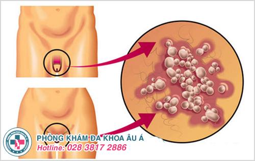 Mụn nhọt ở vùng kín : Hình ảnh nguyên nhân dấu hiệu cách trị