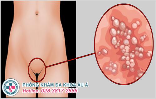 Mụn nước ở bộ phận sinh dục nữ là dấu hiệu bệnh gì?