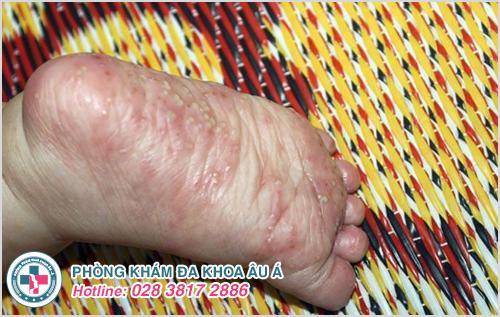 Mụn nước ở chân : Hình ảnh nguyên nhân dấu hiệu cách trị