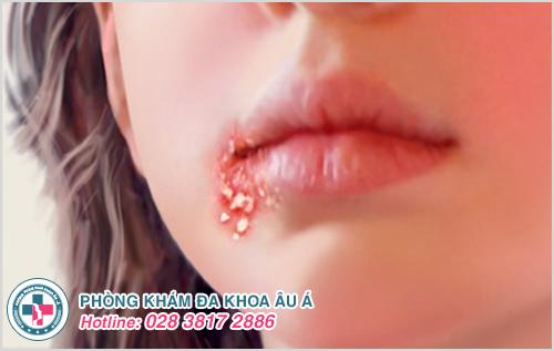 Dấu hiệu mụn rộp sinh dục ở miệng