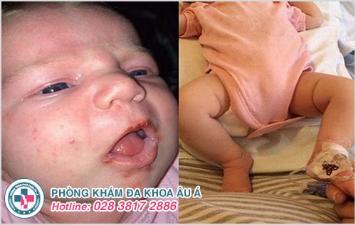 Mụn rộp sinh dục ở trẻ sơ sinh : Nguyên nhân biểu hiện cách trị