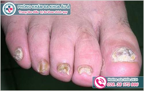 Nấm móng chân: Hình ảnh nguyên nhân dấu hiệu và cách chữa