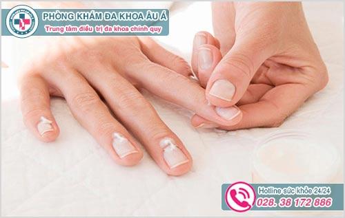 Nấm móng tay: Hình ảnh nguyên nhân biểu hiện và cách chữa