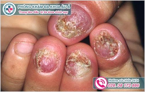 Chữa bệnh nấm móng tay ở đâu TPHCM? Chi phí chữa bao nhiêu 2018?
