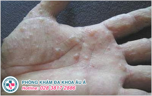 Ngứa lòng bàn tay có mụn nước là dấu hiệu bệnh gì ?