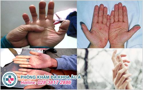 Ngứa lòng bàn tay khi trời lạnh : Nguyên nhân và cách trị