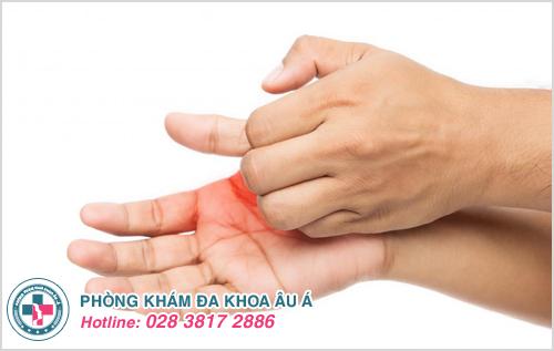 Ngứa lòng bàn tay : Nguyên nhân dấu hiệu cách chữa trị