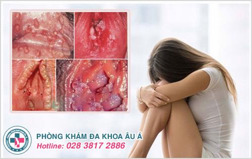 Nguyên nhân dẫn đến mọc mụn thịt ở vùng kín nữ giới