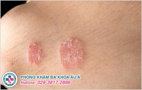 Nguyên nhân gây bệnh vảy nến thể giọt và cách điều trị