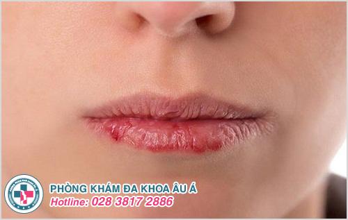 Nguyên nhân nào gây bệnh chàm môi?