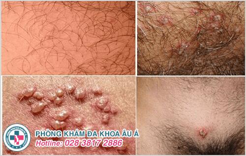 Nhận biết các triệu chứng bệnh herpes sinh dục