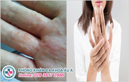 Nhận biết dấu hiệu bệnh ghẻ phỏng và cách điều trị