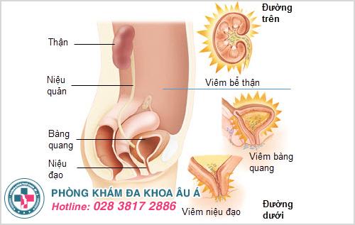 Nhiễm trùng đường tiểu là gì? Nguyên nhân Dấu hiệu Điều trị