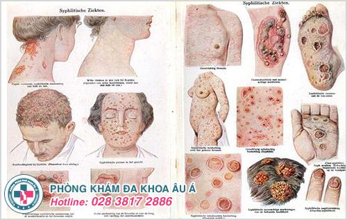 Những biểu hiện đáng sợ của bệnh giang mai