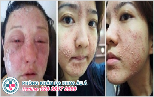 Những dấu hiệu cảnh báo bạn bị viêm da mặt