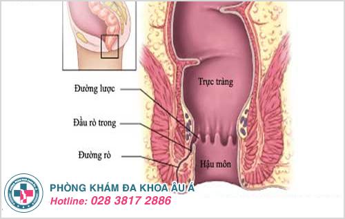 Khi nội soi hậu môn có thể nhìn thấy các đường rò
