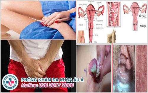 Những điều cần biết về ngứa bộ phận sinh dục ở nam và nữ giới