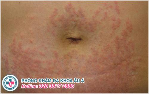 Nổi ban đỏ ở bụng : Hình ảnh nguyên nhân dấu hiệu cách chữa