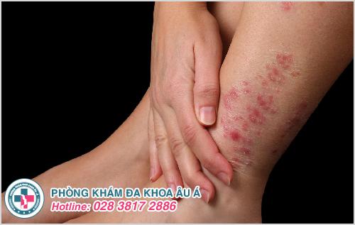 Nổi ban đỏ ở chân : Hình ảnh nguyên nhân dấu hiệu cách chữa