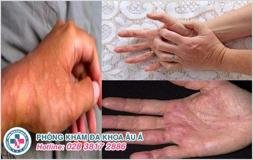 Bệnh nổi mề đay gây nổi ban đỏ trong lòng bàn tay và nhiều vị trí khác trên cơ thể