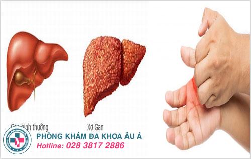 Xơ gan ứ mật là bệnh gây sưng đỏ, ngứa ngáy lòng tay và nhiều triệu chứng nguy hiểm khác