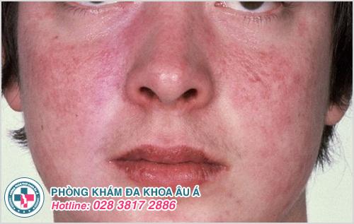 Nổi ban đỏ ở mặt : Hình ảnh nguyên nhân dấu hiệu cách chữa