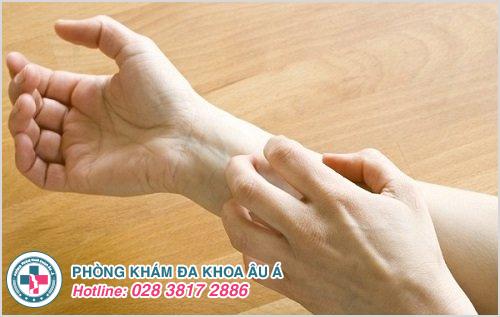 Nổi ban đỏ ở tay : Hình ảnh nguyên nhân dấu hiệu cách chữa