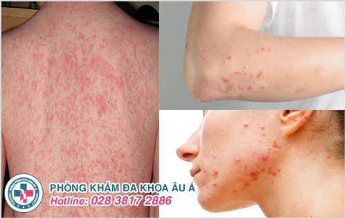 Nổi ban đỏ trên da : Hình ảnh nguyên nhân dấu hiệu cách chữa