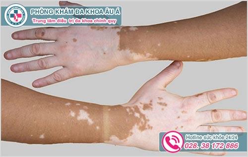 Nổi đốm trắng trên da cánh tay là biểu hiện bệnh gì?