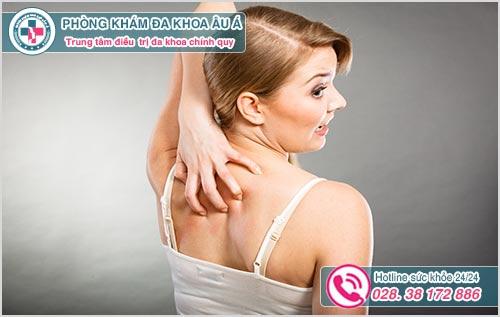 Nổi mẩn ngứa ở lưng: Hình ảnh nguyên nhân dấu hiệu cách chữa