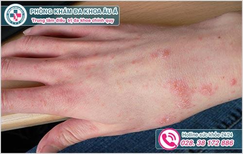 Nổi mẩn ngứa ở tay: Hình ảnh nguyên nhân dấu hiệu cách chữa