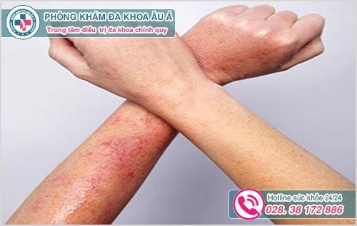 Bệnh da liễu là gì? Hình ảnh nguyên nhân dấu hiệu và cách chữa
