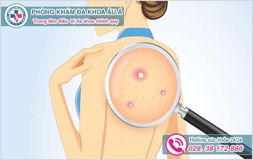 Nổi mụn lưng ở phụ nữ: Hình ảnh nguyên nhân dấu hiệu cách chữa
